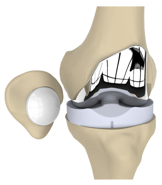 Axis Knee System